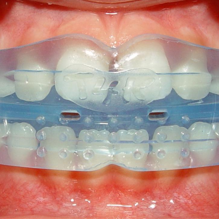 teeth-1652976_1280-1